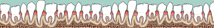 Teeth_banner_preview